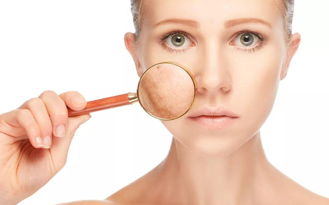 食话食说 冬季皮肤易干燥起皮?很可能是缺了这种营养素