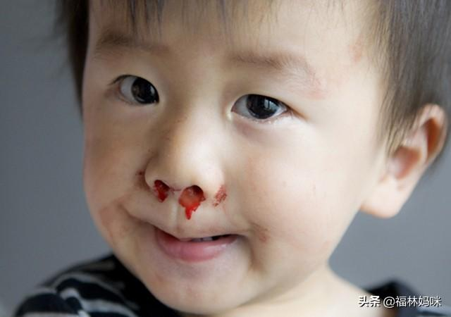 【宝宝经常流鼻血怎么办?仰头、堵鼻子都不对!宝妈应该这样做】