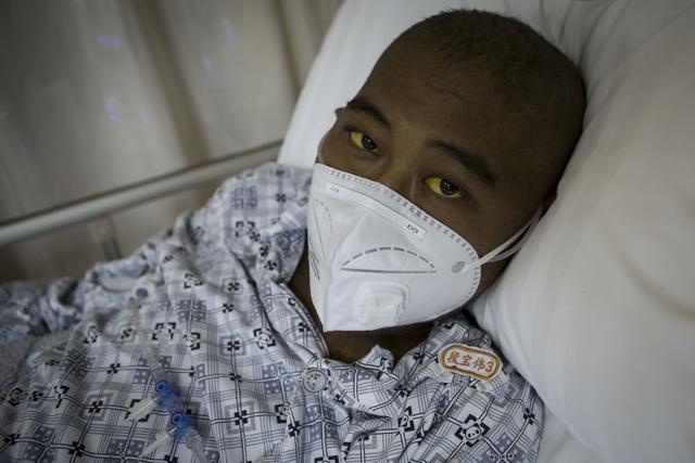 22岁男孩禁食50天瘦成皮包骨,写抗癌日记:人间疾苦 命运善妒