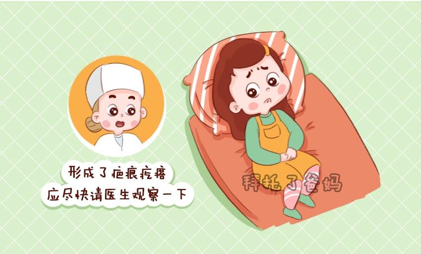 躲不掉的产后三大巨痛,新手妈妈如何应对?
