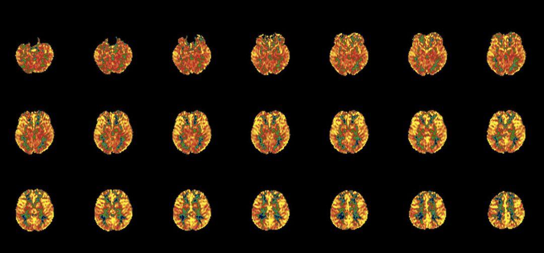 _研究| 磁共振成像在脑缺血基础研究中的应用