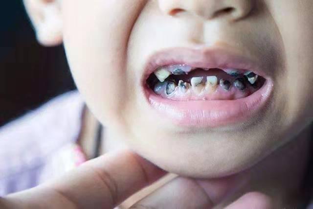 3歲女孩不吃糖卻滿口黑牙,爺爺滿臉疑惑,可醫生卻非常憤怒!