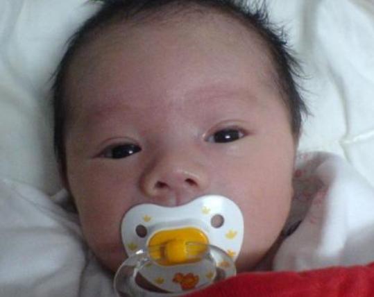 剖腹产的宝宝和顺产的宝宝,有什么不同?值得了解一下