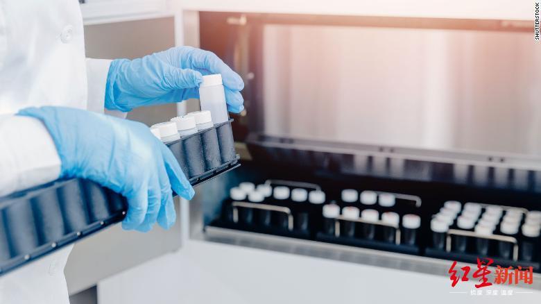 应该开放男性死后捐精吗?英国精子短缺的解决之道惹争议_英国新闻_英国中文网