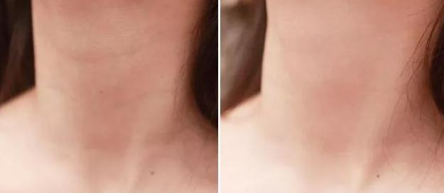嗨体打颈纹多久有效果