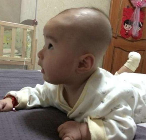 儿科医生提醒:囟门是宝宝健康晴雨表,这项常识父母应要知道