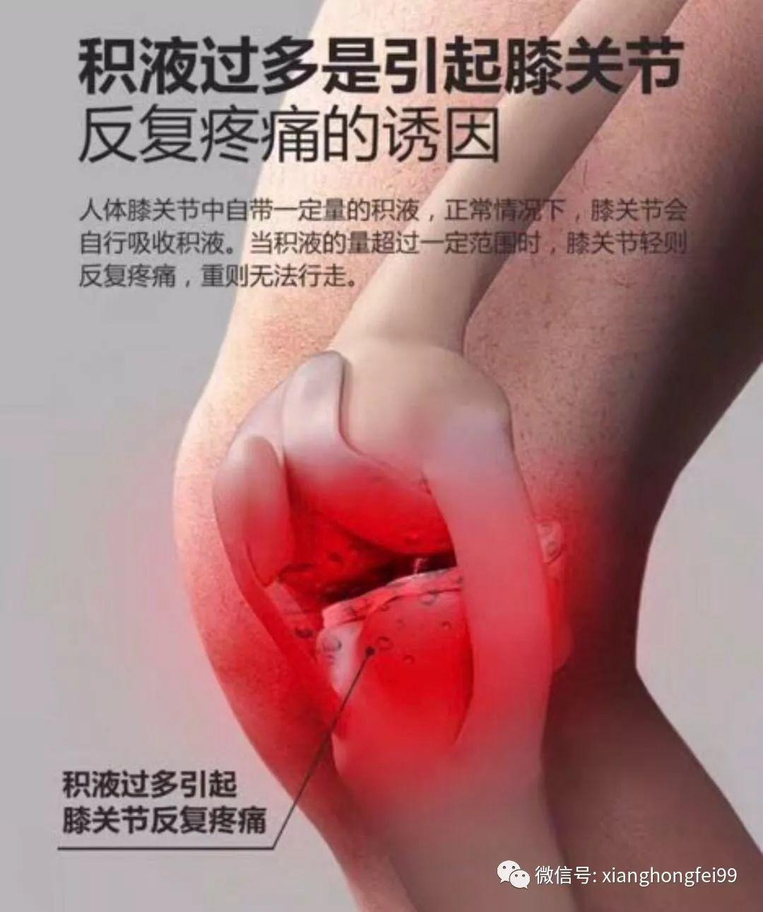 滑膜炎的位置图片