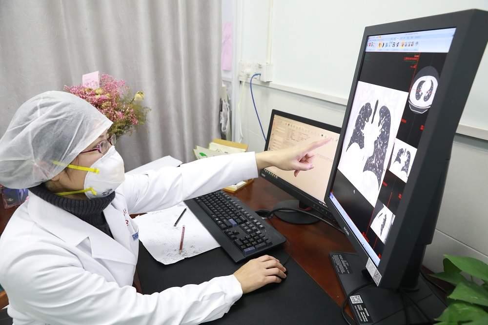 """武汉医生张笑春回应""""CT替代核酸检测"""":非常时期宁错勿漏"""