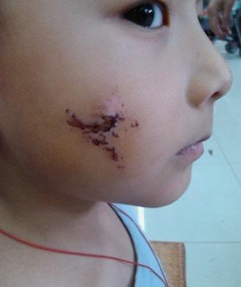 4年前因吃奶太用力,被妈妈用剪刀划伤脸的男婴,现状惹人感慨