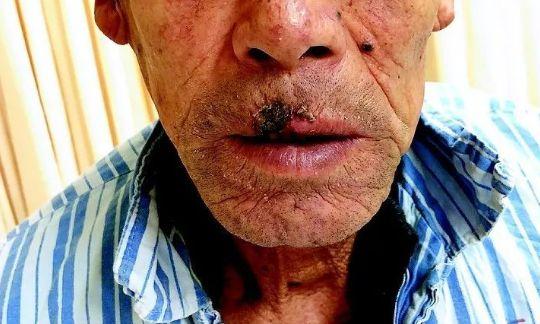 原创体内有癌,皮肤先知?如果皮肤出现这种症状,或许癌症已悄然而至