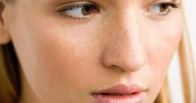 痣多、长斑、皮肤黑……对抗孕期肌肤问题没眼看?