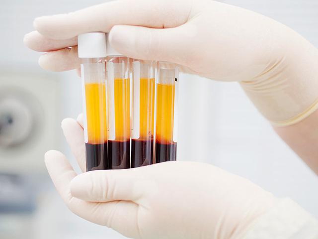 新冠肺炎康复者血浆内抗体可用于治疗,其原理是什么?