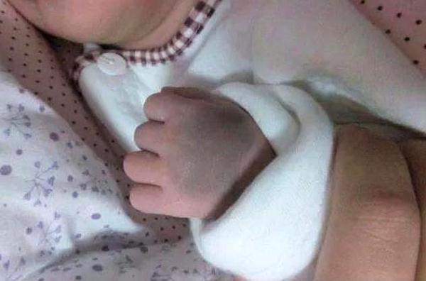 新生儿宝宝为何屁股上会有青斑?见过最有意思的解