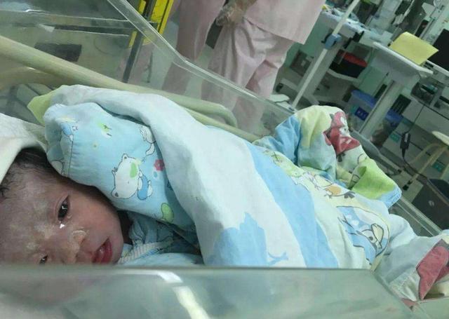 """刚出生的宝宝身上裹着""""奶油"""",妈妈看后万分焦急,医生却连忙道:恭喜了"""
