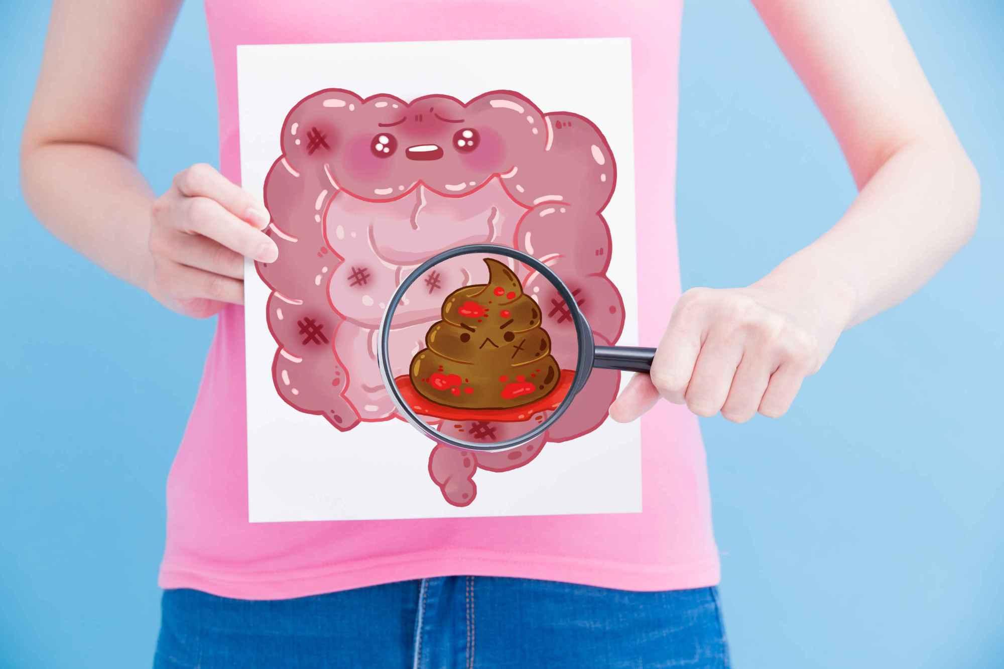 """原创总觉得肠癌""""悄无声息""""?饭后五个异常,别再拖,尽早去做检查!"""