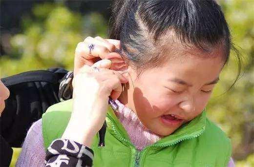 原创耳屎究竟该不该掏?很多人都做错了,听听专家怎么说。