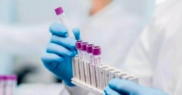 受疫情影响,印度制造业处于低迷状态|印度疫情已引发全球