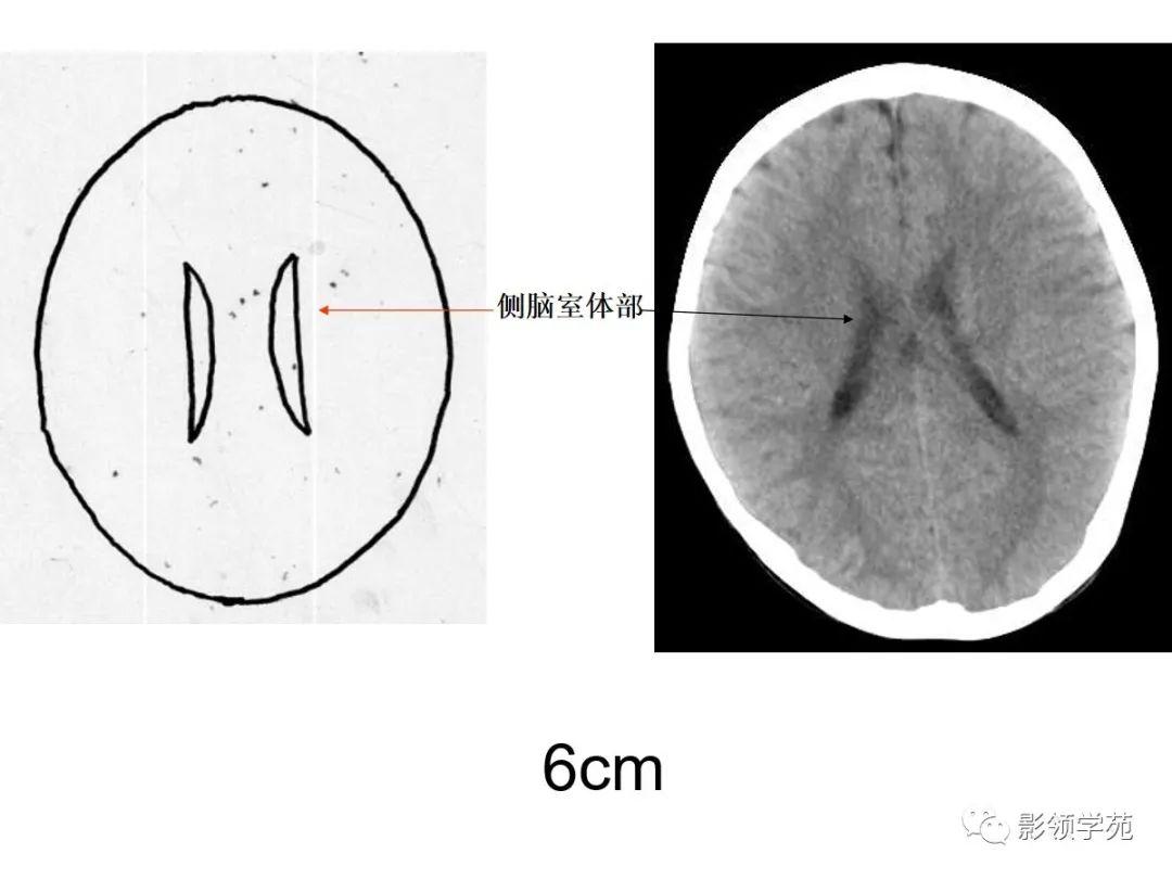 CT轴位鼻腔和鼻窦层面(解剖图片)_手机网