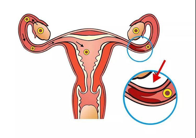 如果只剩一侧输卵管,影响怀孕吗?