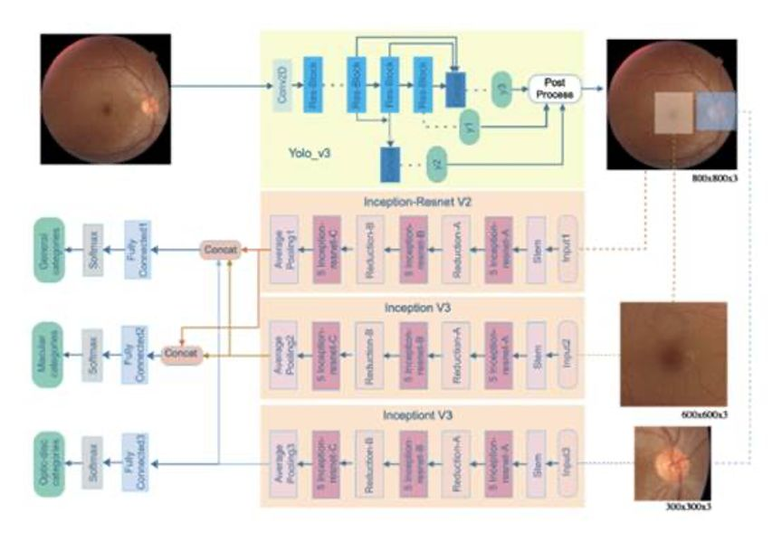 新突破!人工智能模型实现自动精准识别36种视网膜病变