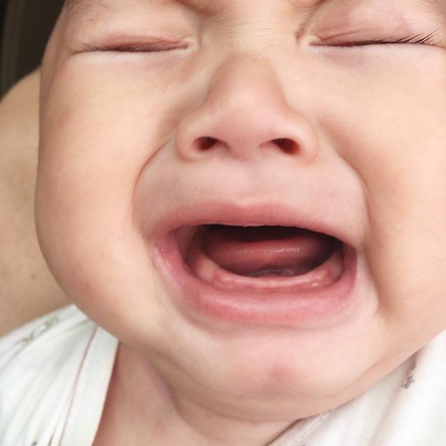 为何有些孩子出牙早,有些孩子出牙晚,有几个细节需要家长注意