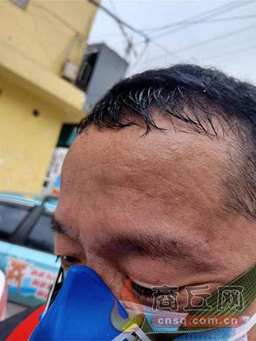 商丘义工联义务防疫消毒队队员张亚峰:义务消杀 勇敢逆行