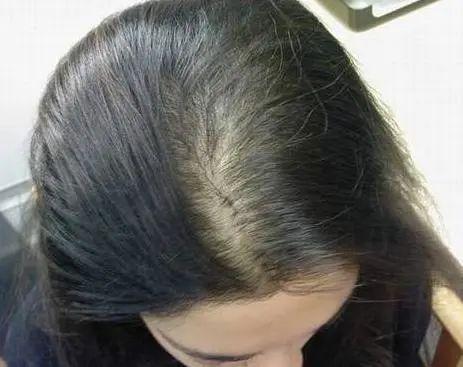 季节性脱发,妊娠脱发,斑秃,还买生发水?不用那么麻烦!