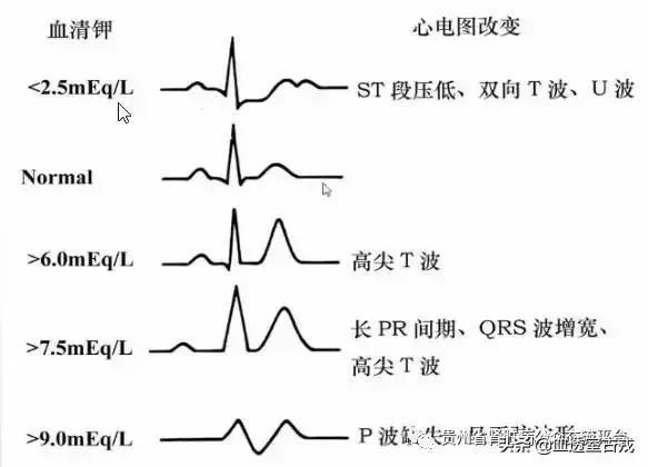 血钾过高补钙的原理_高血钾心电图