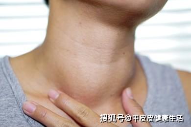 出现这些症状,说明甲状腺结节已经开始走向恶化!