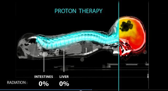 质子治疗让3岁患髓母细胞瘤患者重新穿上芭蕾舞鞋(图2)