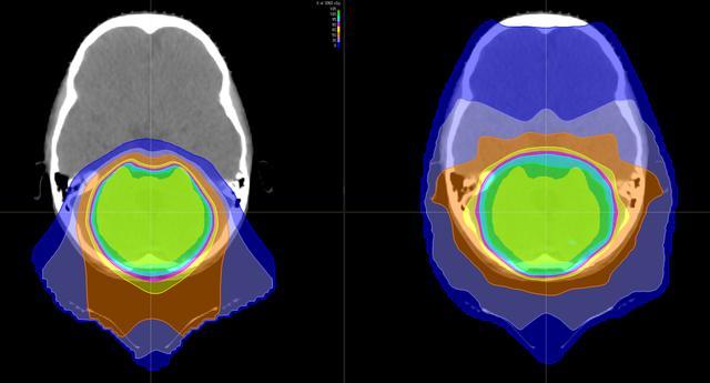 质子治疗让3岁患髓母细胞瘤患者重新穿上芭蕾舞鞋(图3)