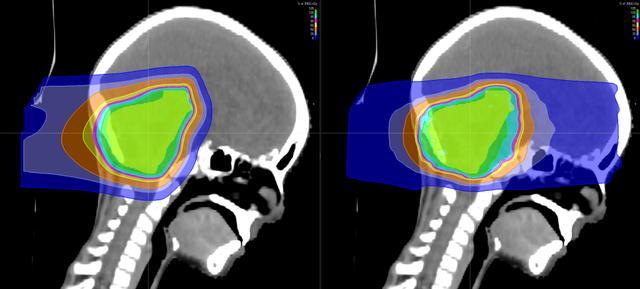 质子治疗让3岁患髓母细胞瘤患者重新穿上芭蕾舞鞋(图4)