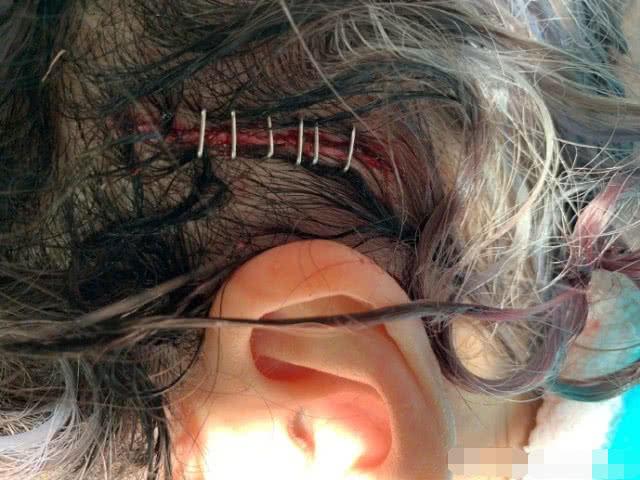 萧亚轩晒照自曝去年头部严重创伤,伤口打上6枚钢针惹网友心疼!
