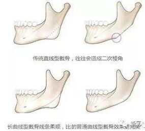 43岁的陈数十几年前就完美解决了自己的下颌角,你得服!