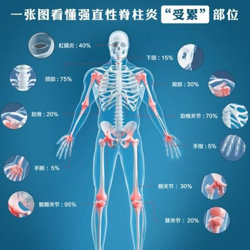 强直性脊柱炎受累部位示意图