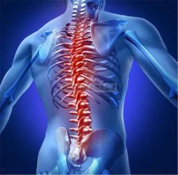 强直性脊柱炎示意图