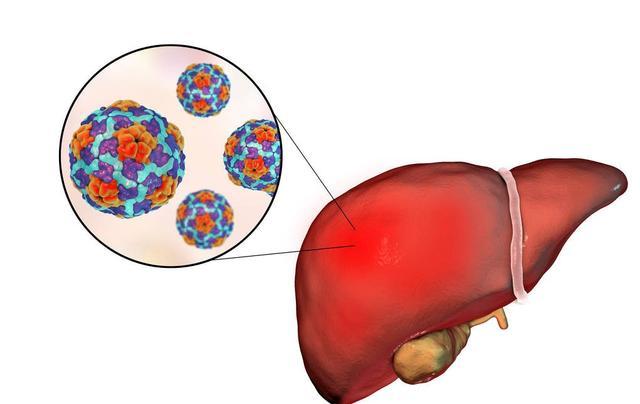"""原创春季养生当护肝,对于""""沉默的""""肝癌,要怎么做才能预防?"""