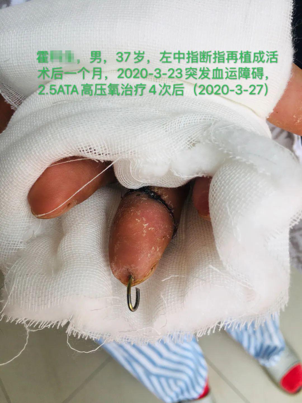 高压氧治疗骨髓炎