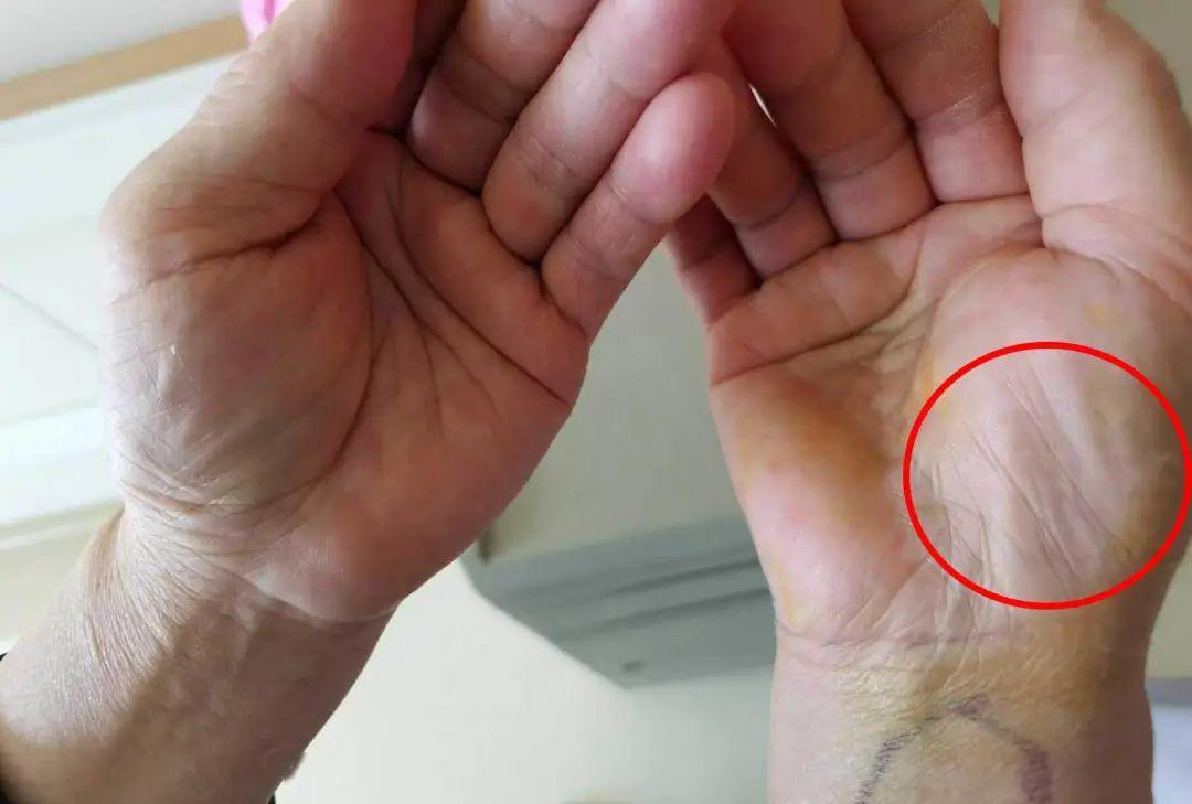 女子出现手麻,拖延1年后就医,手掌这地方已瘪掉!很多人易中招