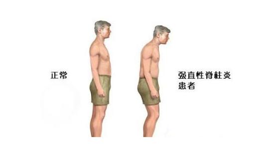 正常人和得了强直性脊柱炎的人的示意图