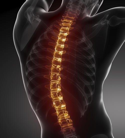 强直性<a href=http://www.52fukang.com/qzxjzy/ target=_blank class=infotextkey>脊柱炎</a>脊柱疼痛