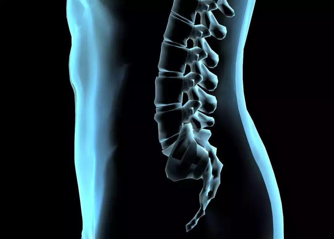 腰椎间盘突出示意图