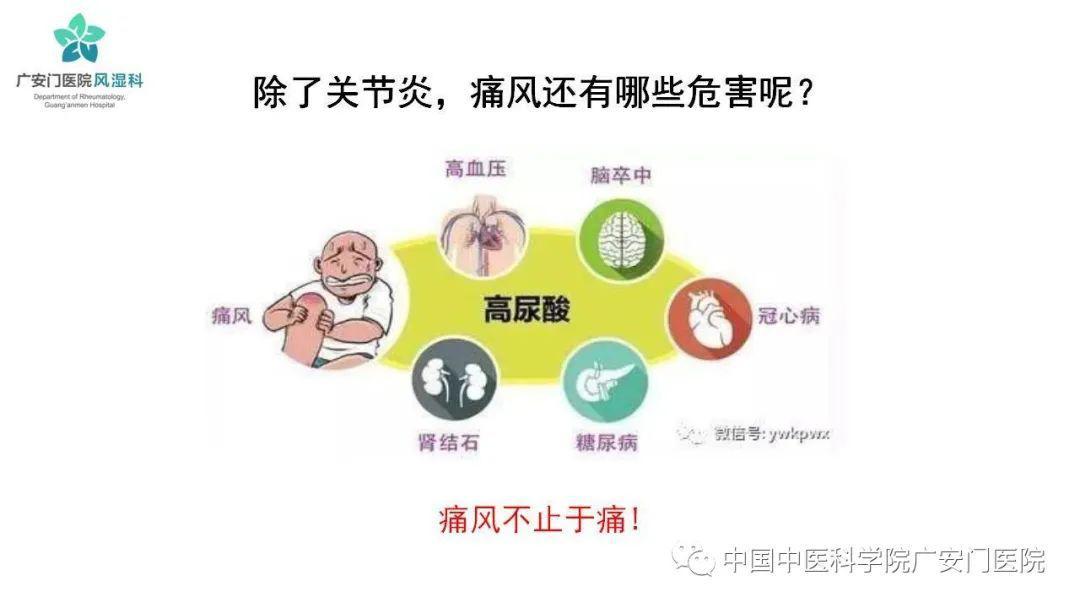 """【广医科普】""""痛风面面观科学防与治""""健康大课堂"""