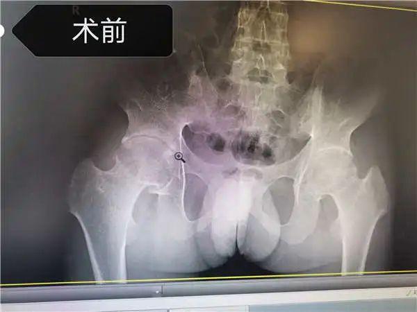 一位得了强直性脊柱炎的人手术前B超图