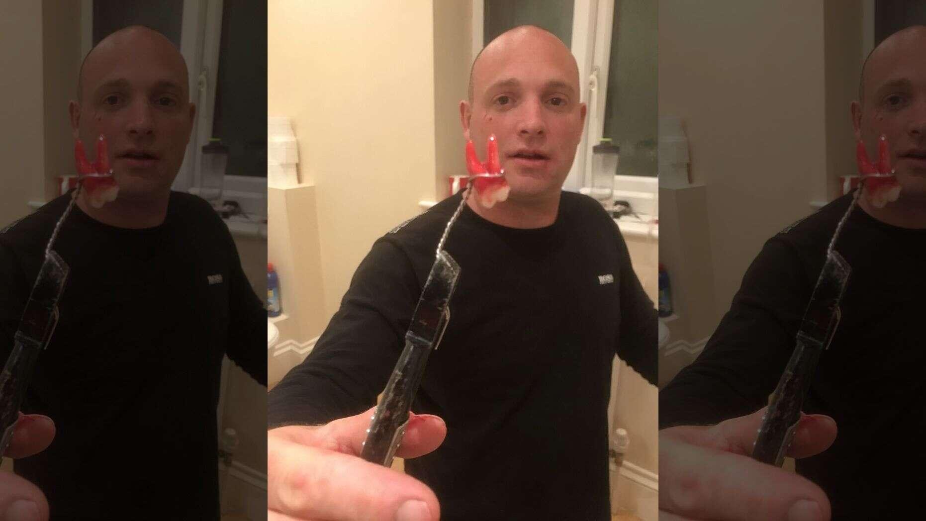 FoxNews:牙科急诊关闭!一名英国人花了一个小时给自己拔牙
