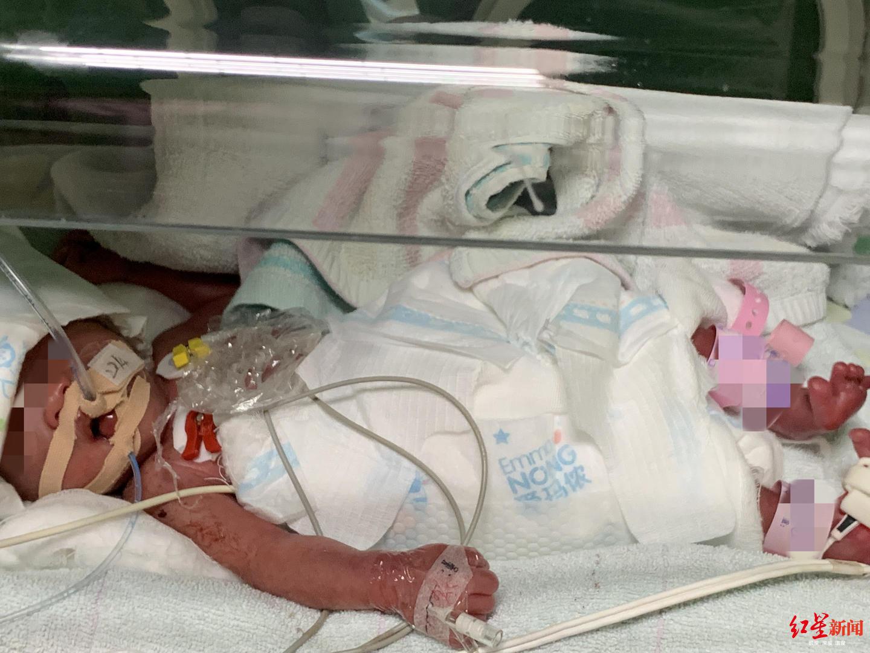 怀孕22周胎儿腹中图片