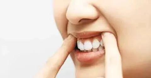 老人口腔护理_牙齿美白的秘密 竟在美基元双十一购美节