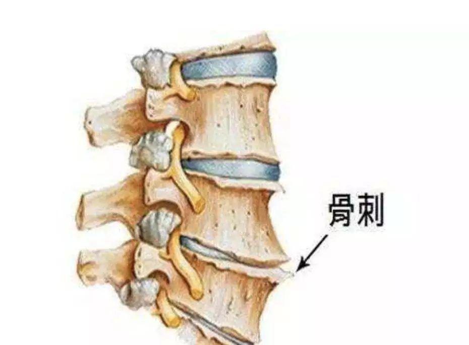 颈椎病示意图