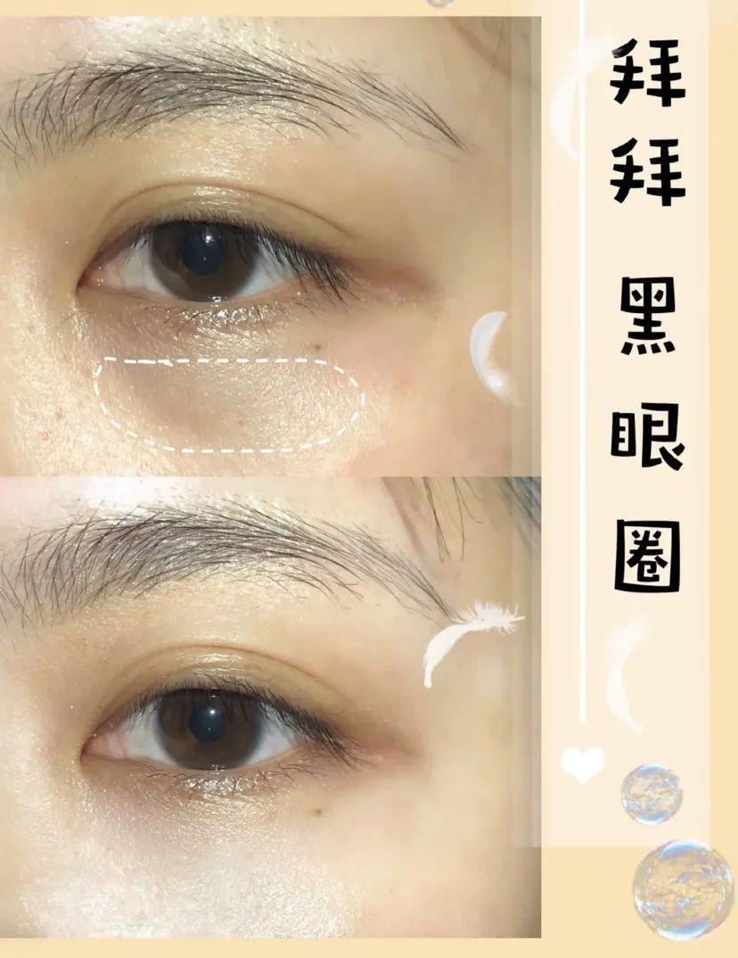 97年出生的关晓彤,黑眼圈已经这么深了?鹿晗你也不管管!