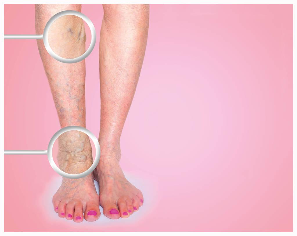 用于治疗下肢静脉曲张的十种药物